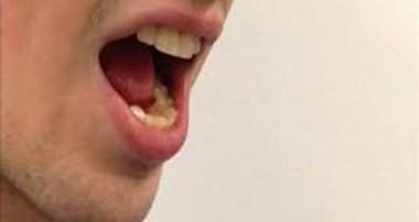 کاهش بوی بد دهان روزهدار