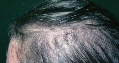 گیاهان دارویی برای مو