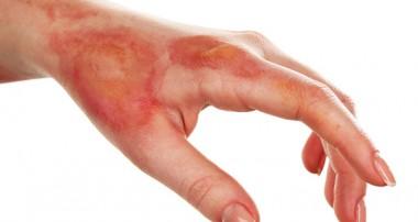 درمانهای خانگی سوختگی با بخار